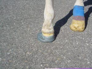 Abb. 2: Konservativer Therapieversuch zur Korrektur einer Achsenfehlstellung – Extension Shoe